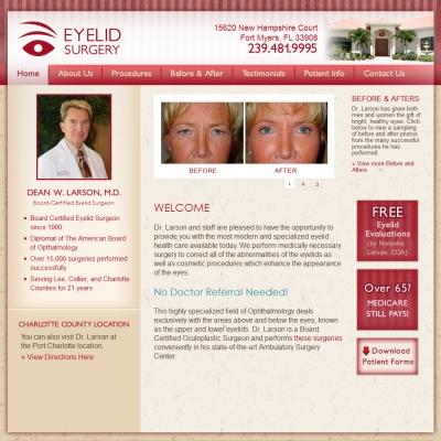 Eyelid Surgery, Ophthalmology